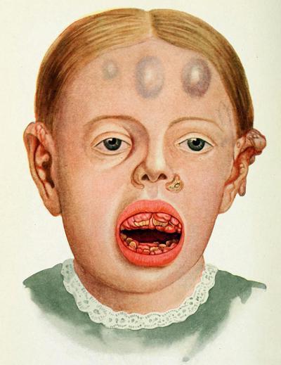 Доклад Почему люди болеют цингой (4 класс окружающий мир)
